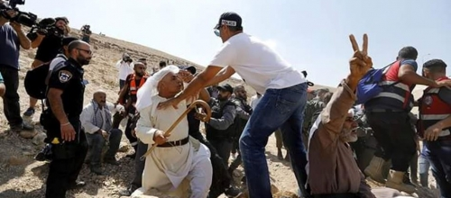 Palestinian arrested, others injured in Khan al-Ahmar protests